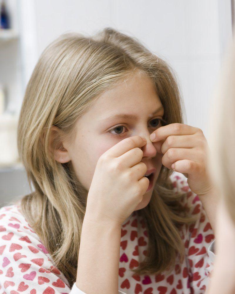 10 råd til forebyggelse af uren hud og bumser